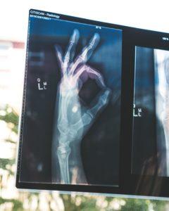 X-Ray Hand Okay Symbol